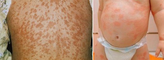 сыпь при кори и лекарственный дерматит