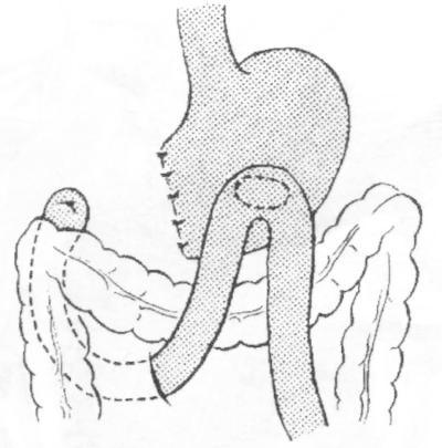 Оперативное лечение язвы желудка
