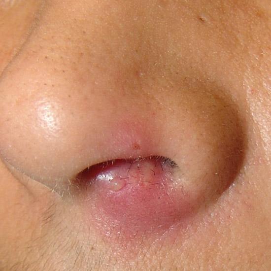 фурункул носа