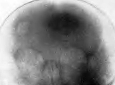 повреждение теменной кости черепа