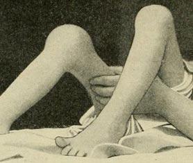 туберкулез коленных суставов