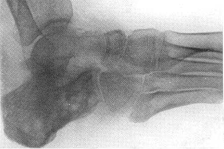 поражение пяточной кости