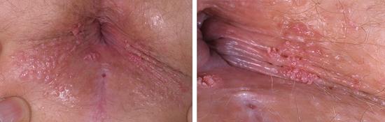 остроконечные кондиломы в области ануса
