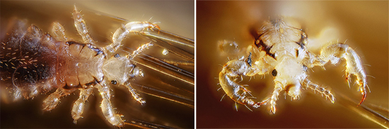 вши под микроскопом