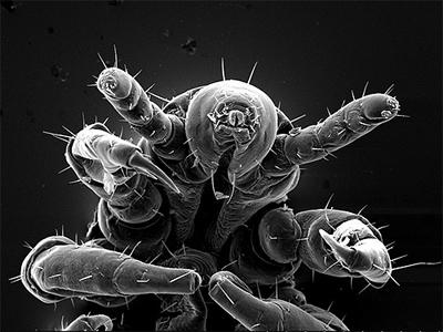 вши вид под микроскопом