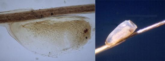 гниды и личинки (фото)