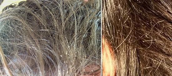 гниды на волосах